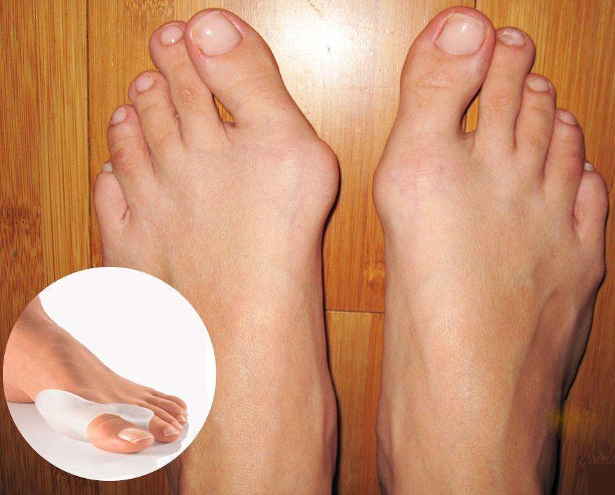 большой палец ноги не сгибается в суставе
